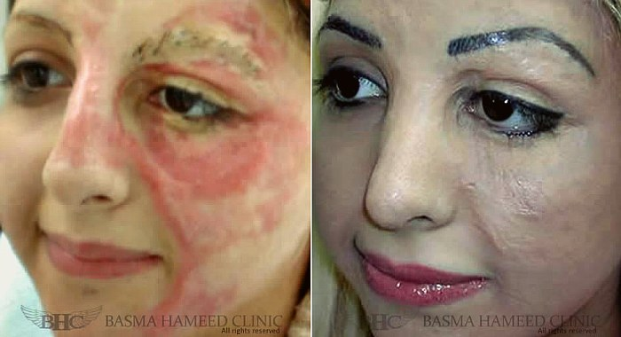 Woman Tattoos Her Own Face To Cover Scars, Starts Business To Help Other Burn Victims