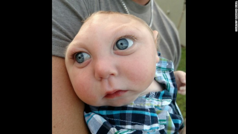 Baby born without a complete skull defies the odds
