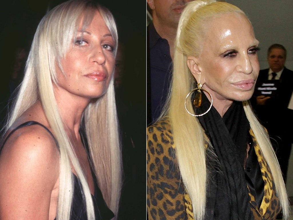 20-worst-cases-of-celebrity-plastic-surgery-gone-wrong-1