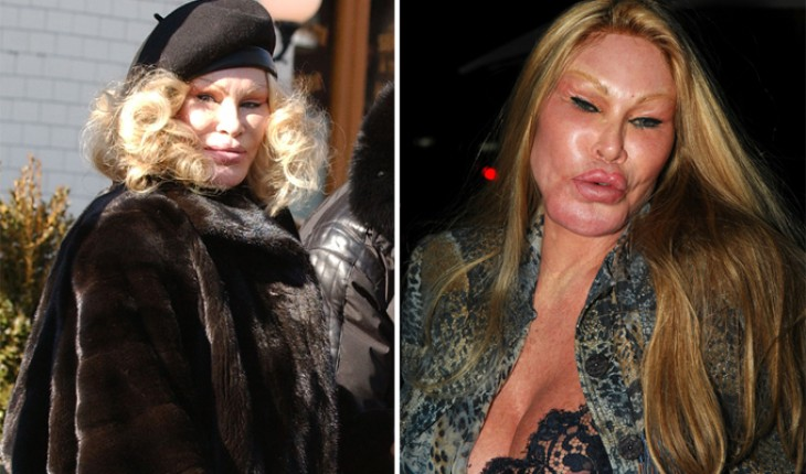 The Worst Plastic Surgery Disasters (Photo)