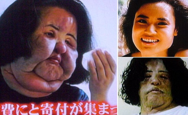 Hang-Mioku-injected-cooking-oil-into-own-face