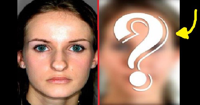 Rhinoplasty, which changed you beyond recognition! (photos)