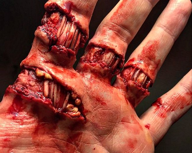 The Severed Fingers and Rotted Flesh of Marc Clancy (photos)