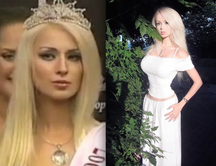 Real Life Barbie Before And After Body Real-Life Barbies and ...