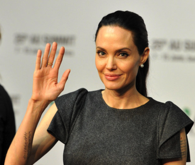 Doctors released an accurate diagnosis of Angelina Jolie