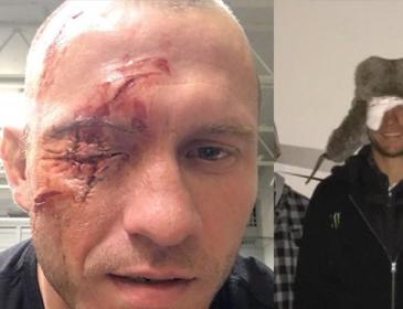 "Cerrone Face update — ""Cowboy"" Bandaged Up Three Days Later"