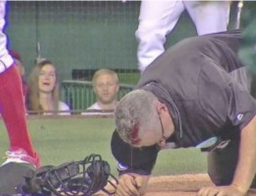 TERRIBLE: MLB Umpire Covered In Blood (VIDEO)