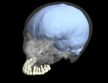 Myth buster: Our big brains and small teeth did not evolve at the same time