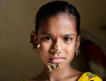 Впервые в мире девушка заболела синдромом дерева