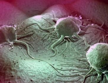 Это даже тяжело представить! Ученые обнаружили новый тип заразного рака