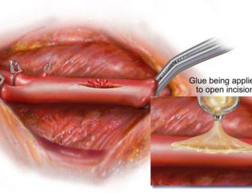 Было создано клей для открытых ран