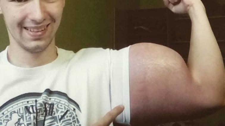 У «Синтолового качка» уже начались проблемы со здоровьем: У него отказали…