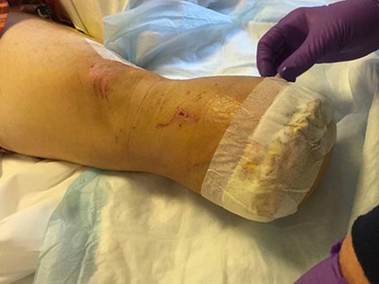 «Оказалась не очень вкусной»: Мужчина приготовил собственную ногу и накормил ею друзей (18+)